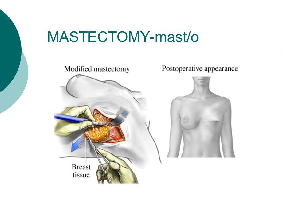 MASTECTOMY-mast/o
