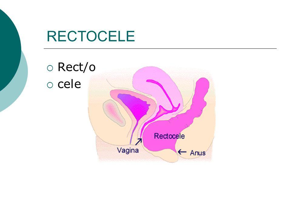 RECTOCELE  Rect/o  cele