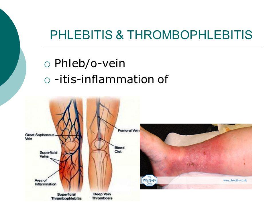 PHLEBITIS & THROMBOPHLEBITIS  Phleb/o-vein  -itis-inflammation of