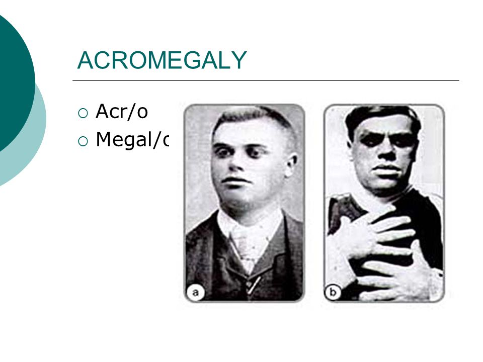 ACROMEGALY  Acr/o  Megal/o