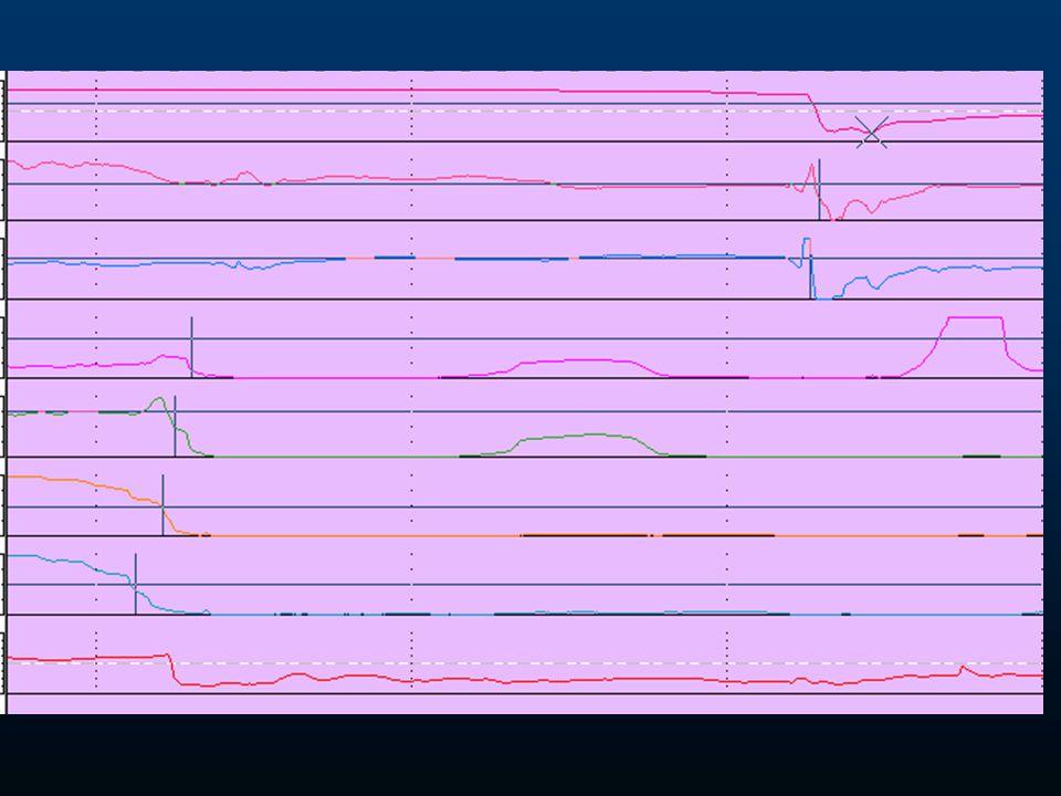 LPR Impedance