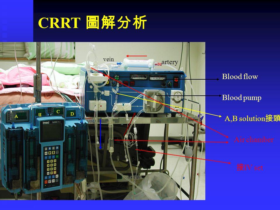 A B C D artery vein Blood pump Blood flow A,B solution 接頭 Air chamber 接 IV set CRRT 圖解分析