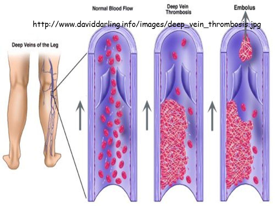 http://www.daviddarling.info/images/deep_vein_thrombosis.jpg