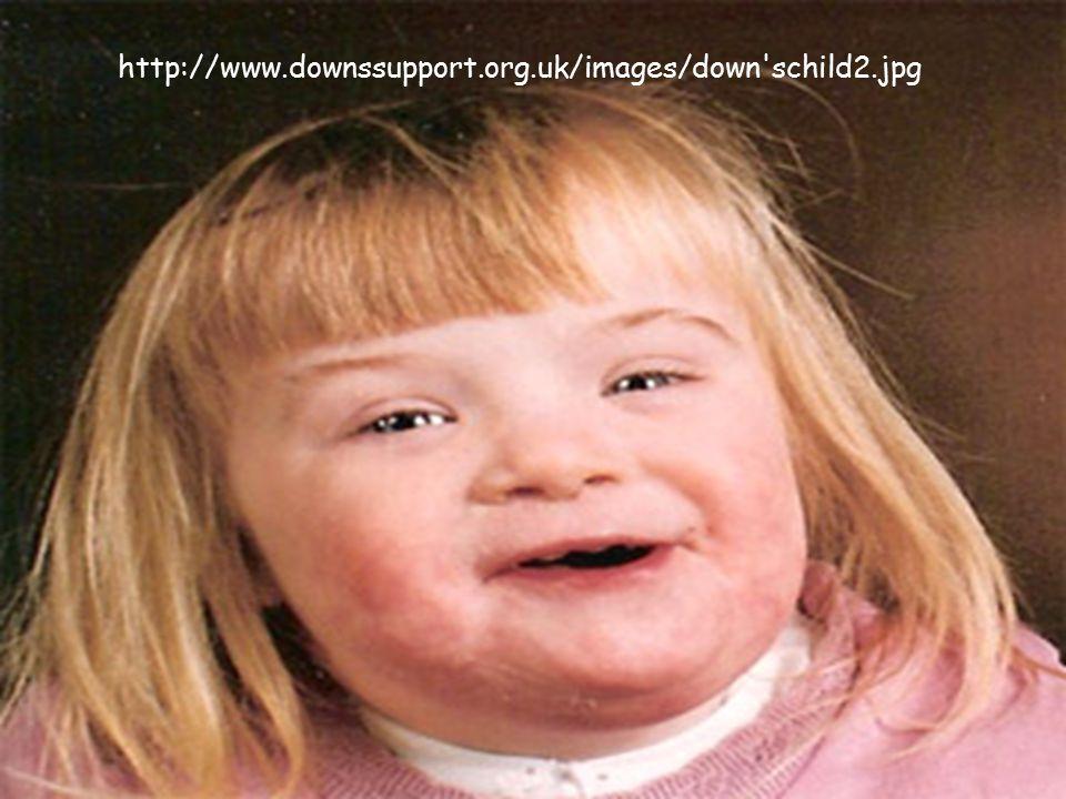 http://www.downssupport.org.uk/images/down schild2.jpg