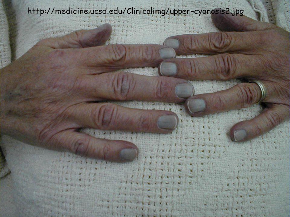http://medicine.ucsd.edu/Clinicalimg/upper-cyanosis2.jpg