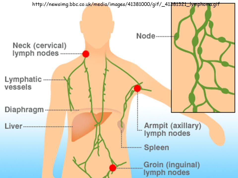 http://newsimg.bbc.co.uk/media/images/41381000/gif/_41381321_lymphoma.gif