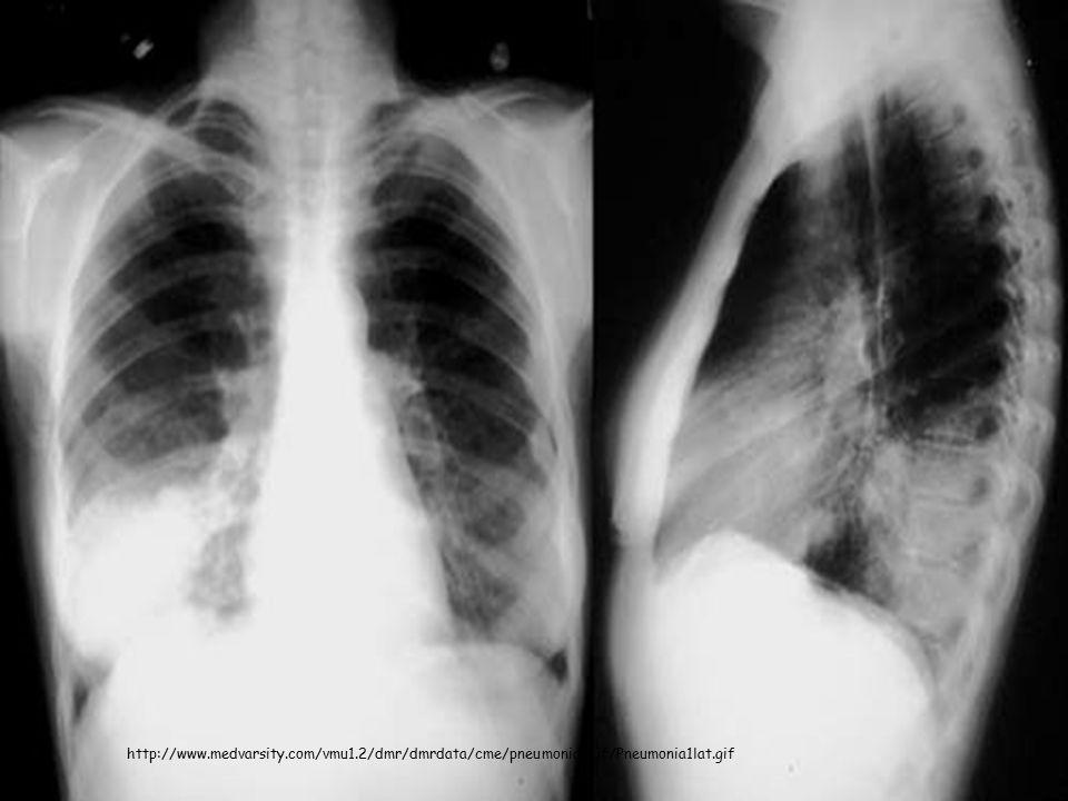 http://www.medvarsity.com/vmu1.2/dmr/dmrdata/cme/pneumonia/gif/Pneumonia1lat.gif