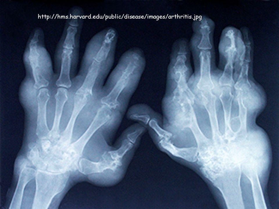 http://hms.harvard.edu/public/disease/images/arthritis.jpg