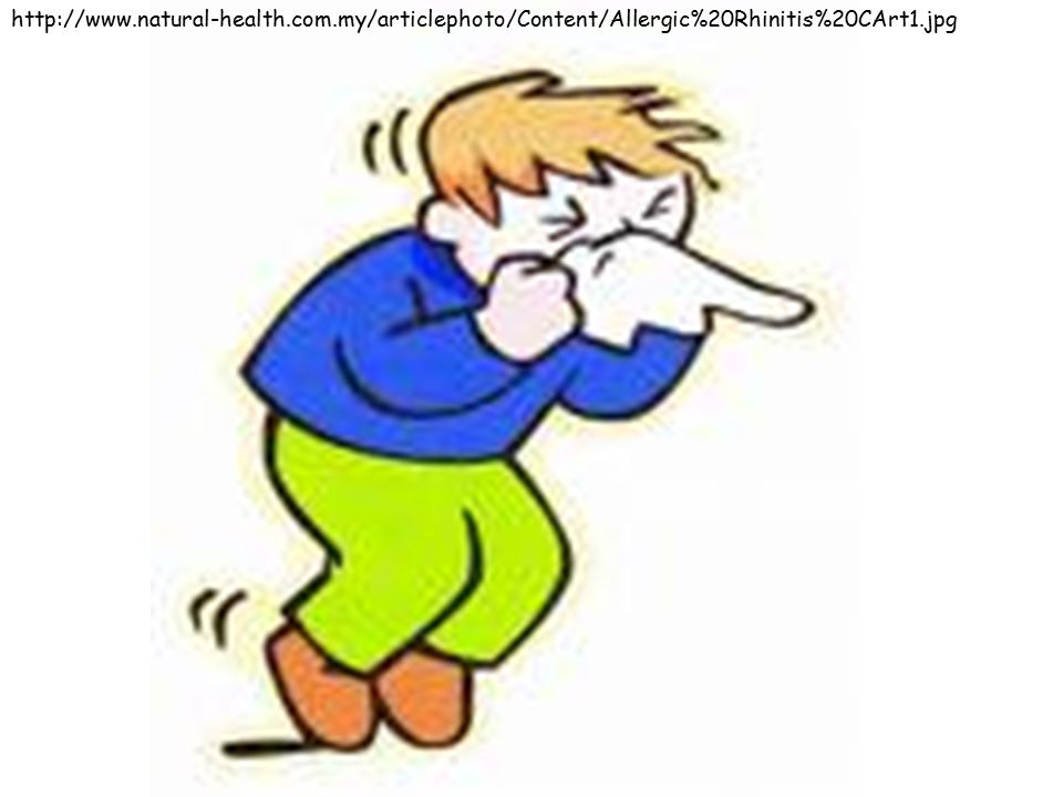 http://www.natural-health.com.my/articlephoto/Content/Allergic%20Rhinitis%20CArt1.jpg