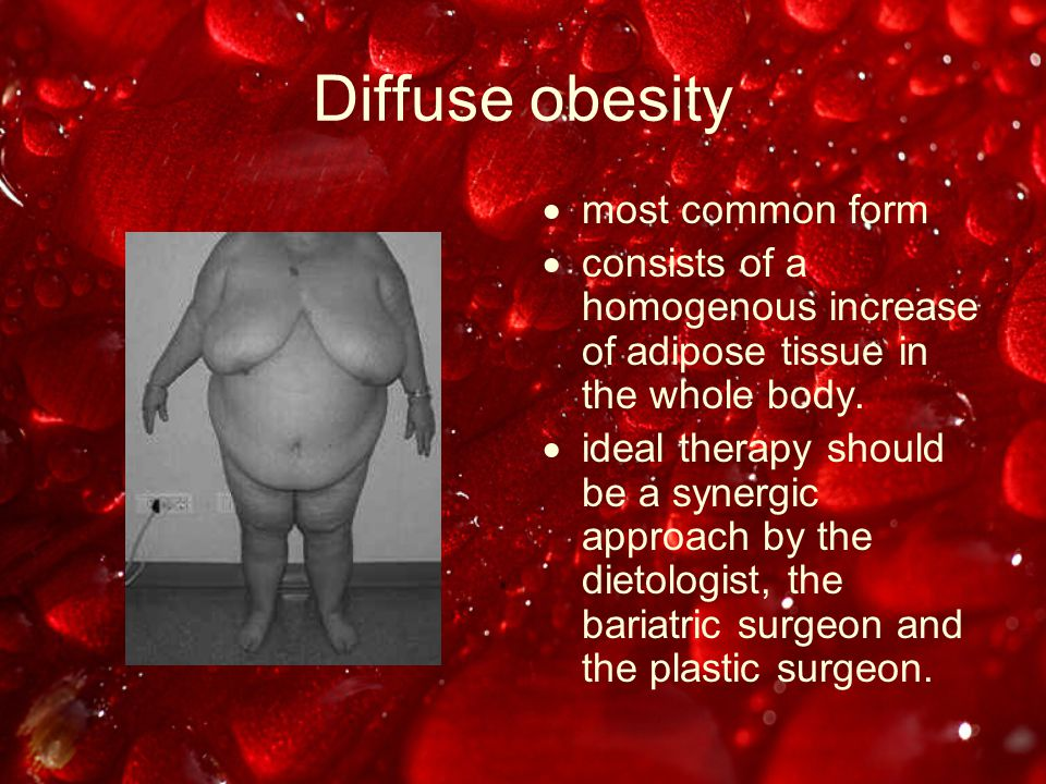 Localised obesity  rare forms of obesity, such as Barraquer- Simons Syndrome, Madelung's disease or Launaois-Bensaude syndrome and other lipodystrophic disorders,  resistant to the dietologist or bariatric surgery.