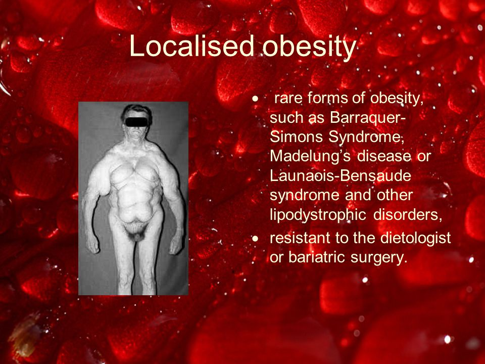Localised obesity  rare forms of obesity, such as Barraquer- Simons Syndrome, Madelung's disease or Launaois-Bensaude syndrome and other lipodystrophic disorders,  resistant to the dietologist or bariatric surgery.