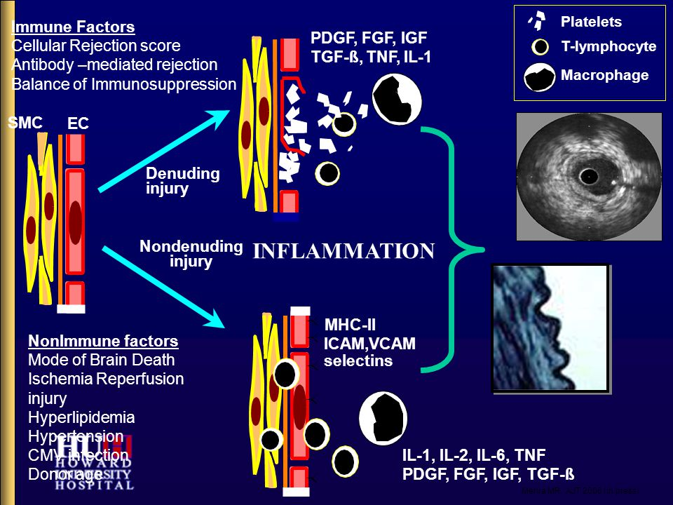 Immune Factors Cellular Rejection score Antibody –mediated rejection Balance of Immunosuppression SMC EC NonImmune factors Mode of Brain Death Ischemia Reperfusion injury Hyperlipidemia Hypertension CMV infection Donor age Denuding injury Nondenuding injury PDGF, FGF, IGF TGF-ß, TNF, IL-1 MHC-II ICAM,VCAM IL-1, IL-2, IL-6, TNF PDGF, FGF, IGF, TGF-ß Platelets T-lymphocyte Macrophage selectins INFLAMMATION Mehra MR.