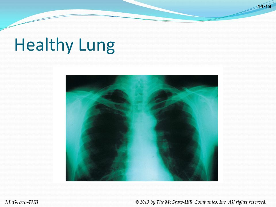McGraw-Hill © 2013 by The McGraw-Hill Companies, Inc. All rights reserved. 14-19 Healthy Lung