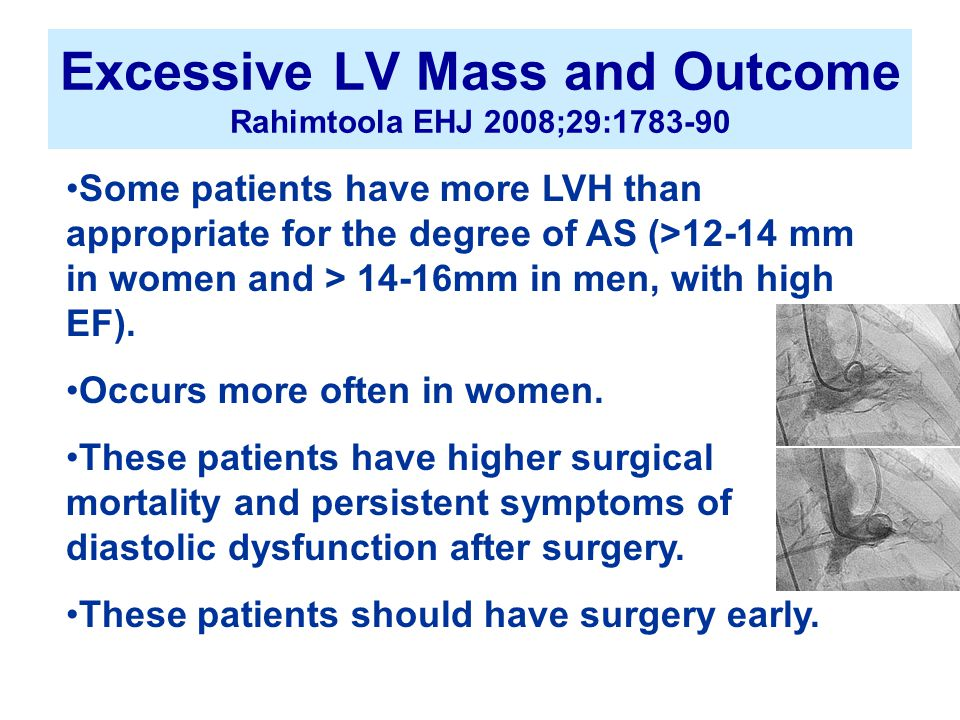 Excessive LV Mass and Outcome Rahimtoola EHJ 2008;29:1783-90 Some patients have more LVH than appropriate for the degree of AS (>12-14 mm in women and > 14-16mm in men, with high EF).