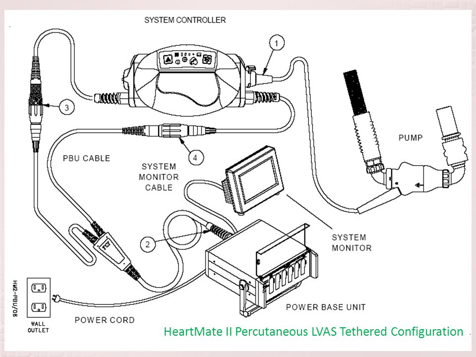 HeartMate II Percutaneous LVAS Tethered Configuration