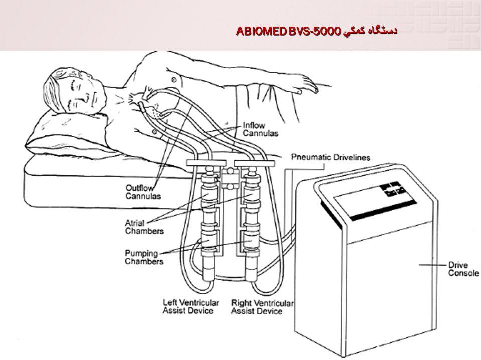دستگاه كمكي ABIOMED BVS-5000