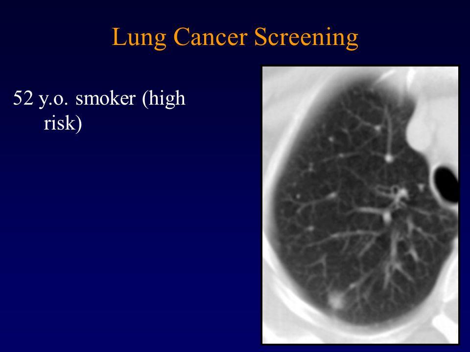 Lung Cancer Screening 52 y.o. smoker (high risk)
