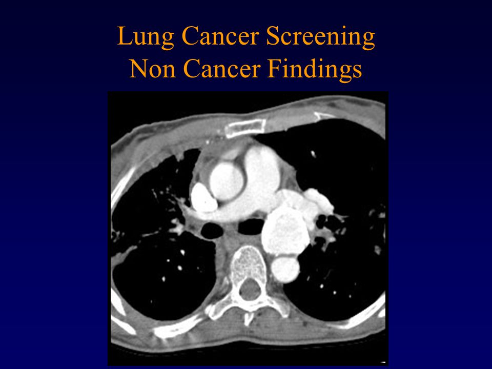 Lung Cancer Screening Non Cancer Findings