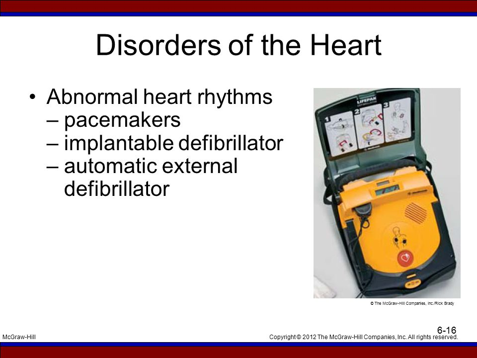 Copyright © 2012 The McGraw-Hill Companies, Inc. All rights reserved.McGraw-Hill 6-16 Disorders of the Heart Abnormal heart rhythms – pacemakers – imp