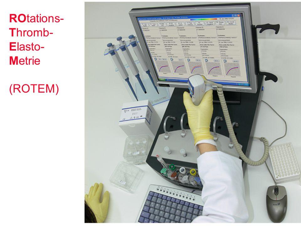 ROtations- Thromb- Elasto- Metrie (ROTEM)