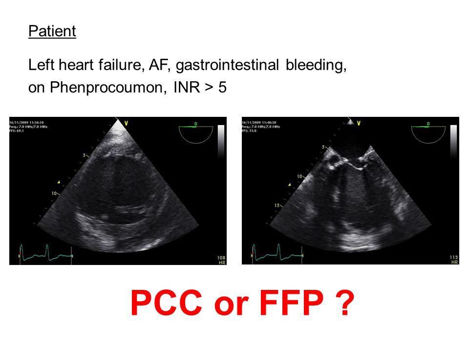 Patient Left heart failure, AF, gastrointestinal bleeding, on Phenprocoumon, INR > 5 PCC or FFP ?