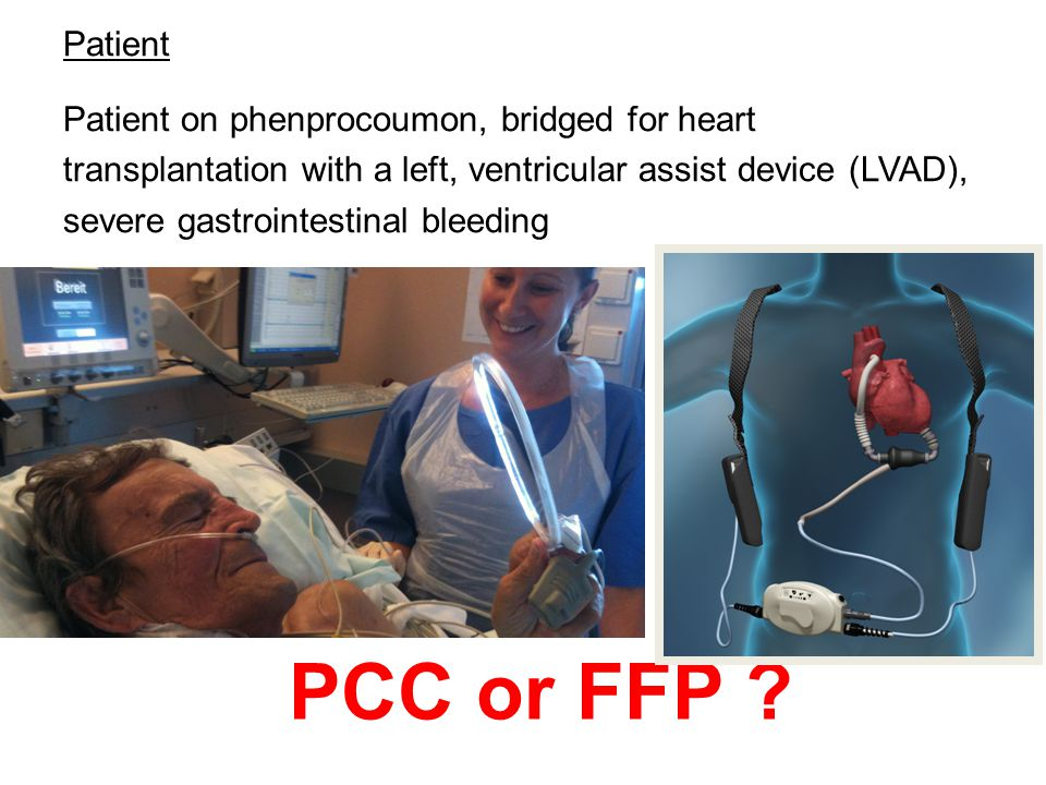 Patient Patient on phenprocoumon, bridged for heart transplantation with a left, ventricular assist device (LVAD), severe gastrointestinal bleeding PC