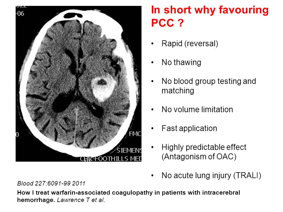 Blood 227:6091-99 2011 How I treat warfarin-associated coagulopathy in patients with intracerebral hemorrhage.