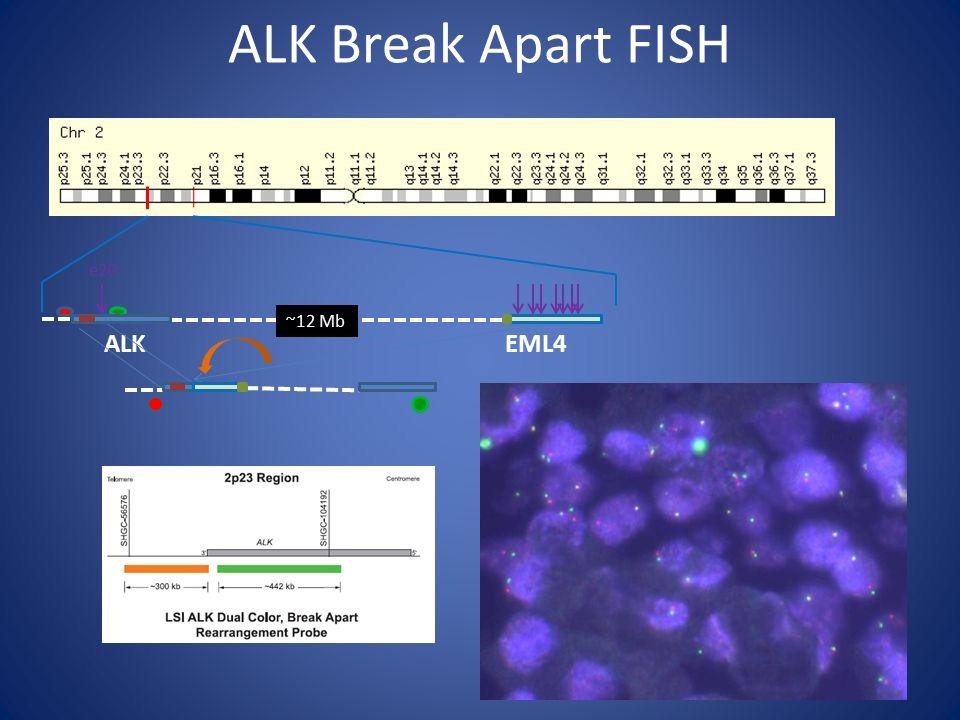 ALK Break Apart FISH ~12 Mb ALKEML4 e20