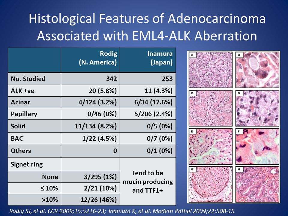 Histological Features of Adenocarcinoma Associated with EML4-ALK Aberration Rodig (N.