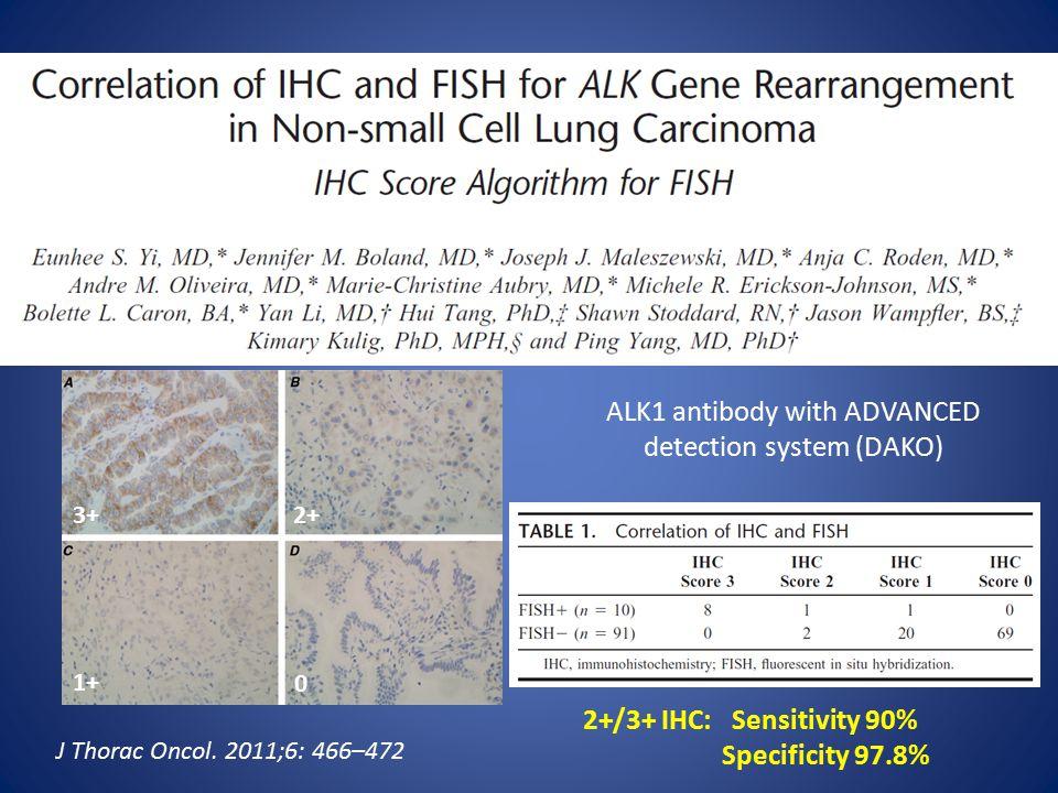3+2+ 1+ 0 ALK1 antibody with ADVANCED detection system (DAKO) 2+/3+ IHC: Sensitivity 90% Specificity 97.8% J Thorac Oncol.