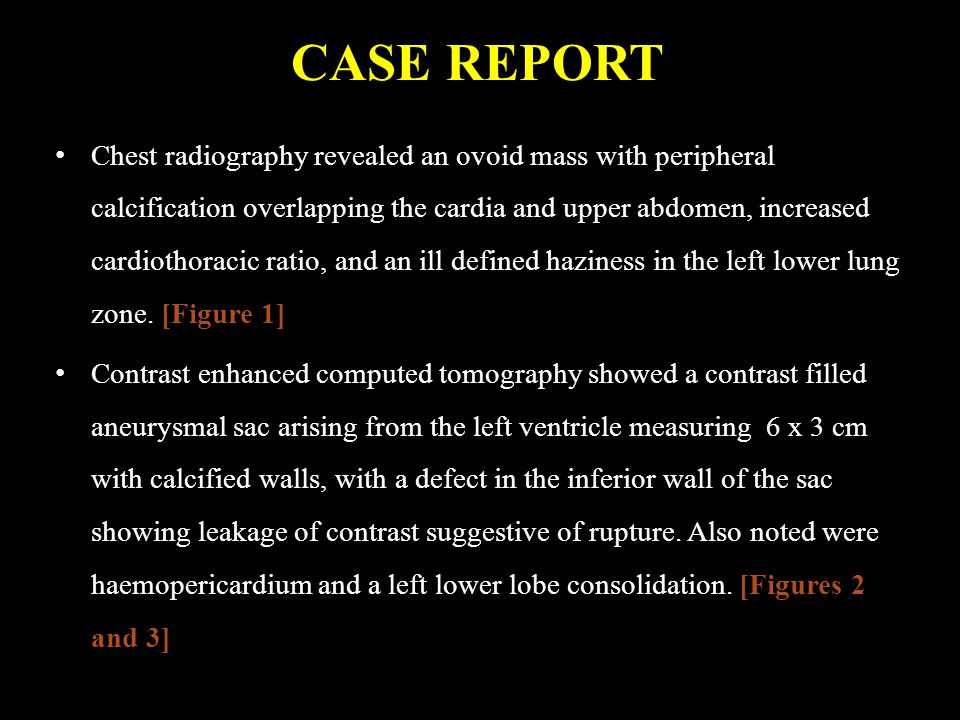 CASE REPORT Chest radiography revealed an ovoid mass with peripheral calcification overlapping the cardia and upper abdomen, increased cardiothoracic ratio, and an ill defined haziness in the left lower lung zone.