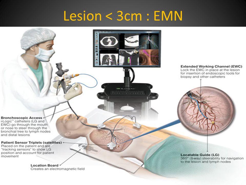Lesion < 3cm : EMN
