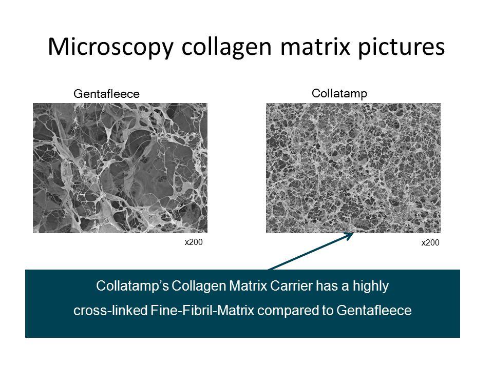 Microscopy collagen matrix pictures Gentafleece Collatamp x200 Collatamp's Collagen Matrix Carrier has a highly cross-linked Fine-Fibril-Matrix compar