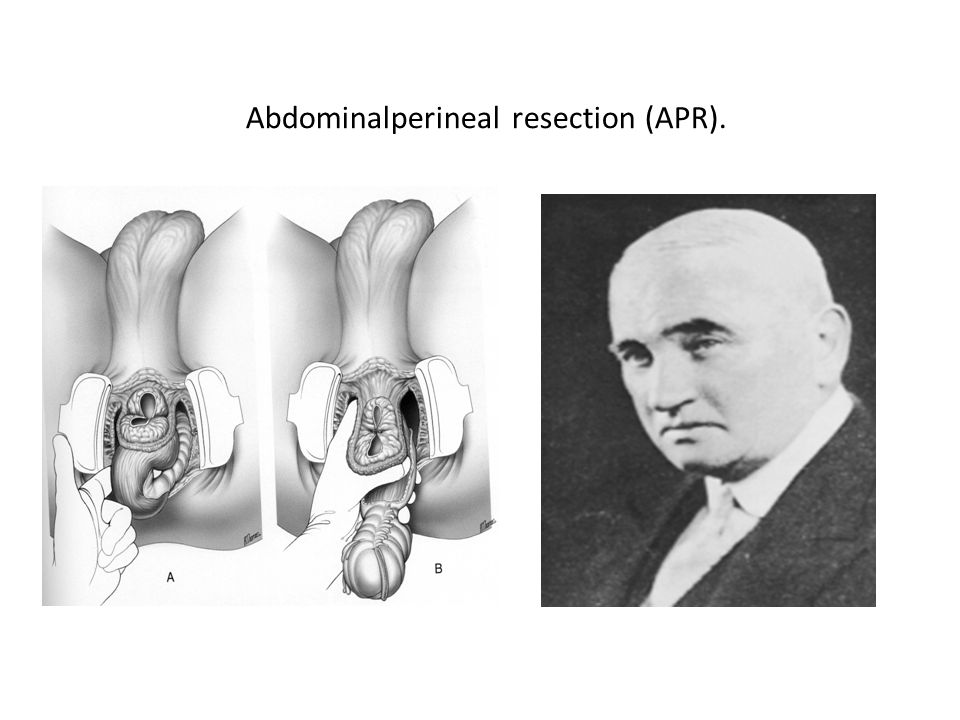 Abdominalperineal resection (APR). Ernest Miles 1908 Perineal infection up to 70%