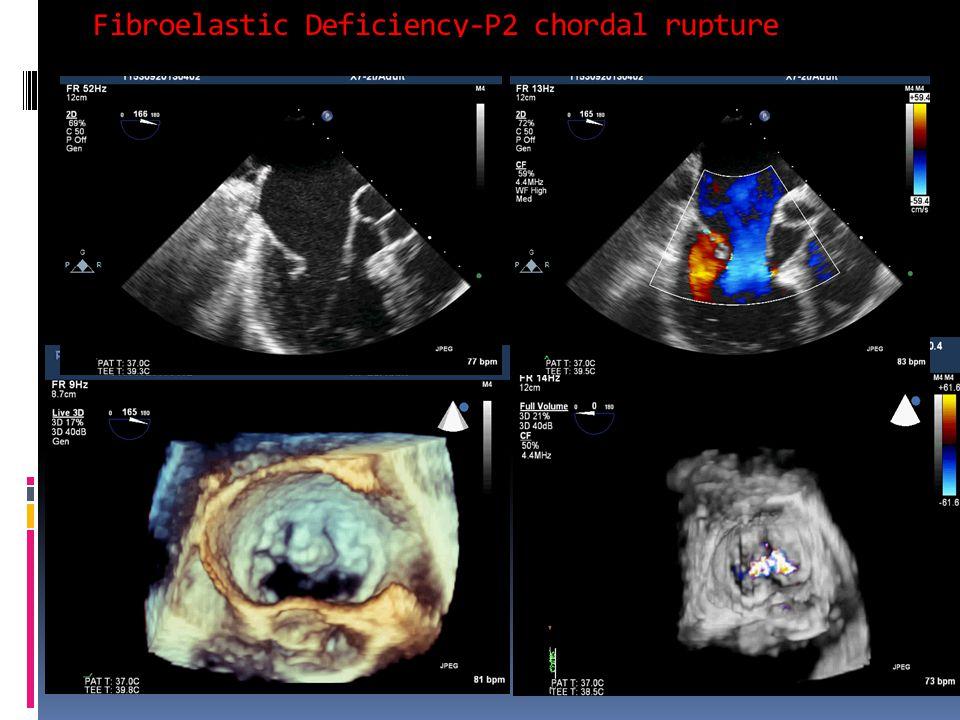 Fibroelastic Deficiency-P2 chordal rupture