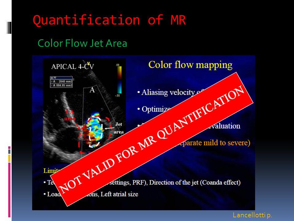 Quantification of MR Color Flow Jet Area Lancellotti p.