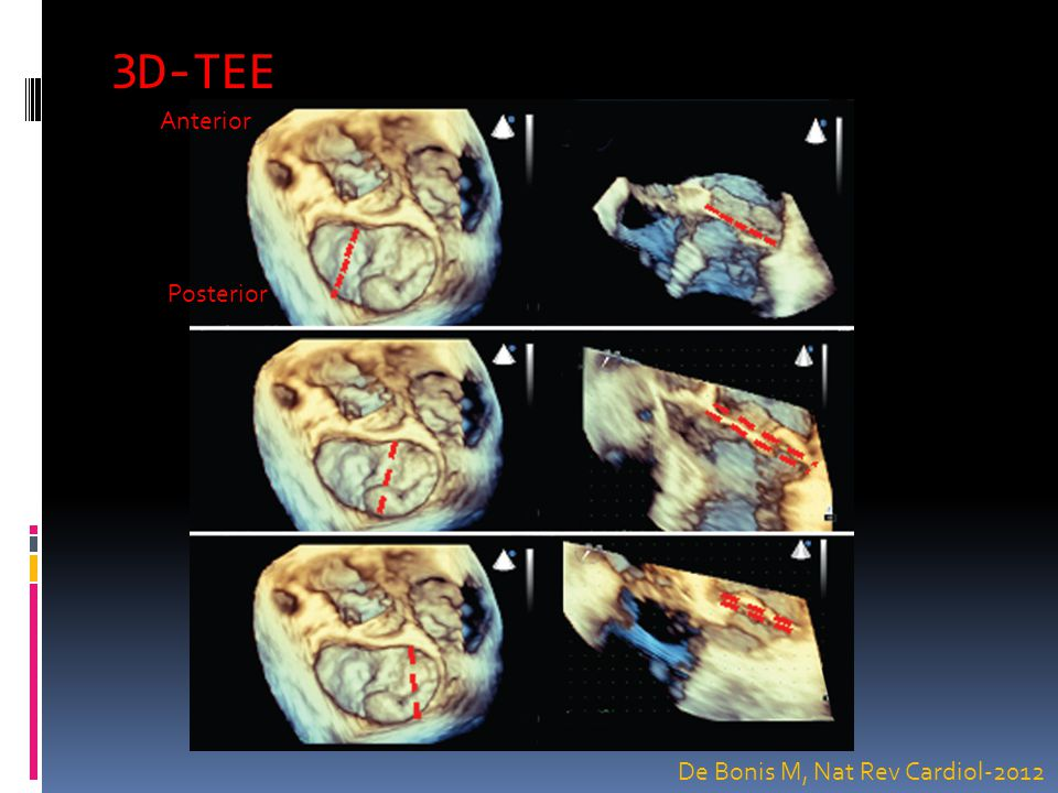 3D-TEE Anterior Posterior De Bonis M, Nat Rev Cardiol-2012