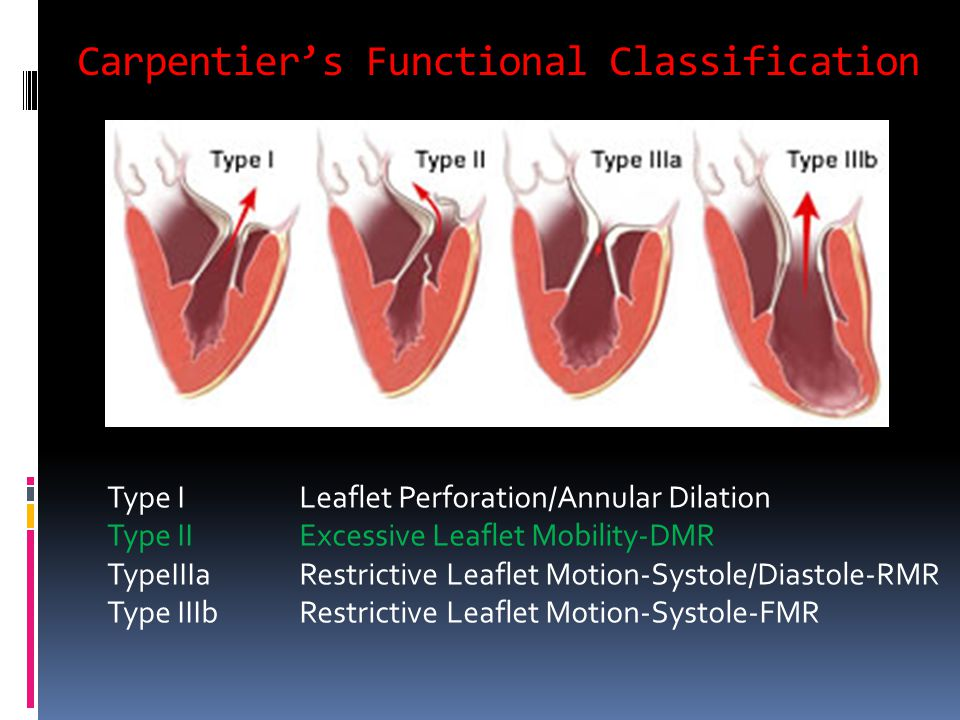 Carpentier's Functional Classification Type I Leaflet Perforation/Annular Dilation Type II Excessive Leaflet Mobility-DMR TypeIIIaRestrictive Leaflet Motion-Systole/Diastole-RMR Type IIIbRestrictive Leaflet Motion-Systole-FMR