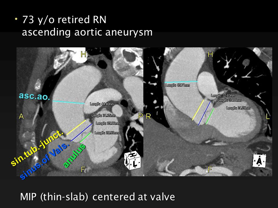 73 y/o retired RN 73 y/o retired RN ascending aortic aneurysm ascending aortic aneurysm MIP (thin-slab) centered at valve anulus sinus.of Vals.