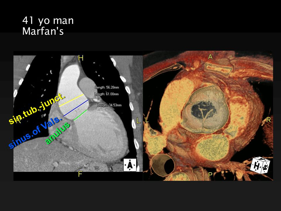 41 yo man Marfan s anulus sinus.of Vals. sin.tub.-junct.