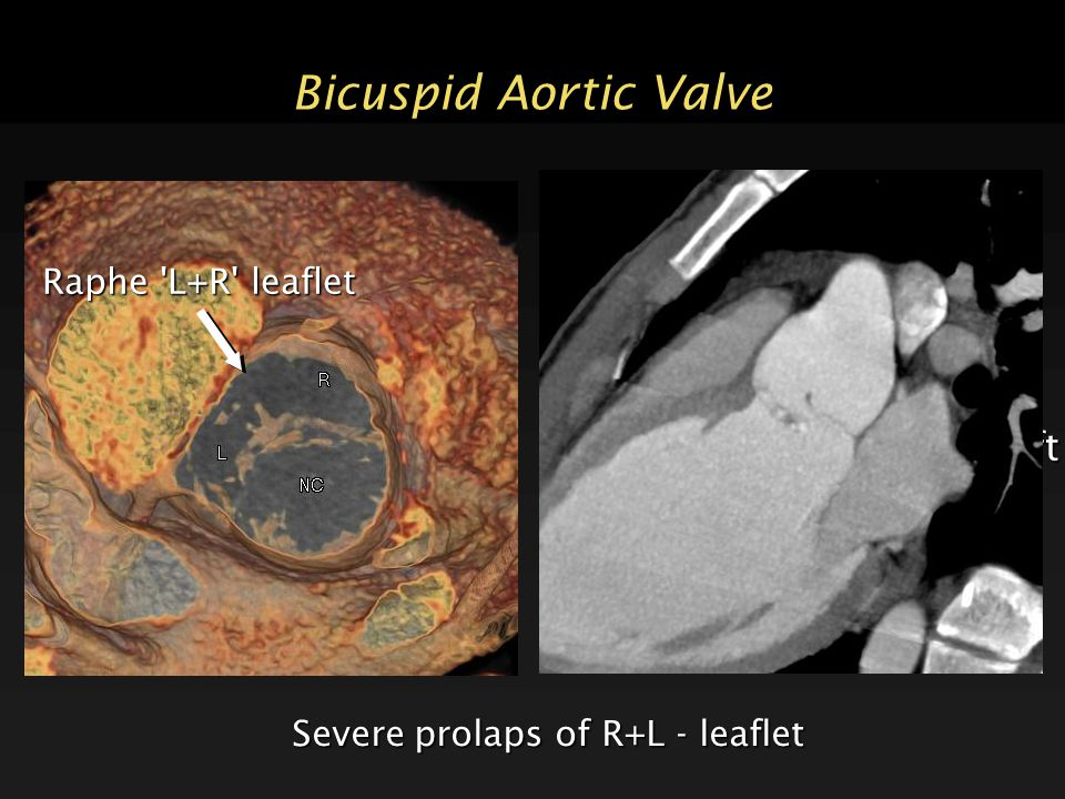 27 year old man bicuspid aortic valve root aneurysm valve prolaps with severe aortic regurgitation and left ventricular dilatation Bicuspid Aortic Val