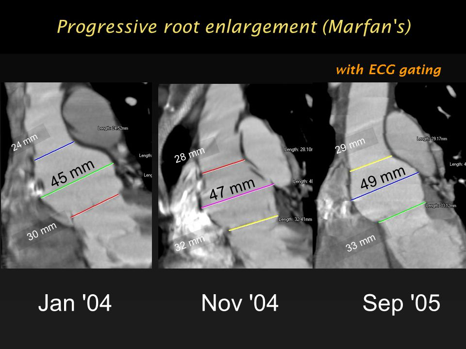 Progressive root enlargement (Marfan s) Jan 04 24 mm 45 mm 30 mm Nov 04 28 mm 47 mm 32 mm Sep 05 29 mm 49 mm 33 mm with ECG gating