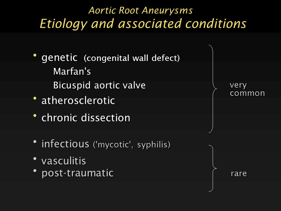 Aortic Root Aneurysms Etiology and associated conditions genetic (congenital wall defect) genetic (congenital wall defect)Marfan s Bicuspid aortic valve atherosclerotic atherosclerotic chronic dissection chronic dissection infectious ( mycotic , syphilis) infectious ( mycotic , syphilis) vasculitis vasculitis post-traumatic post-traumatic rare verycommon