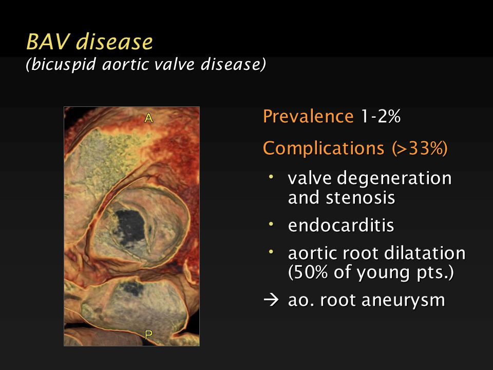 BAV disease (bicuspid aortic valve disease) Prevalence 1-2% Complications (>33%) valve degeneration and stenosis valve degeneration and stenosis endocarditis endocarditis aortic root dilatation (50% of young pts.) aortic root dilatation (50% of young pts.)  ao.