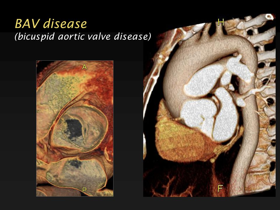 BAV disease (bicuspid aortic valve disease)