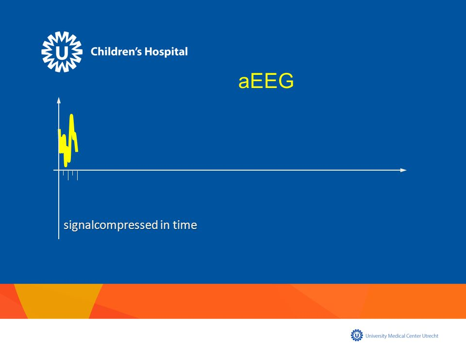signalcompressed in time aEEG
