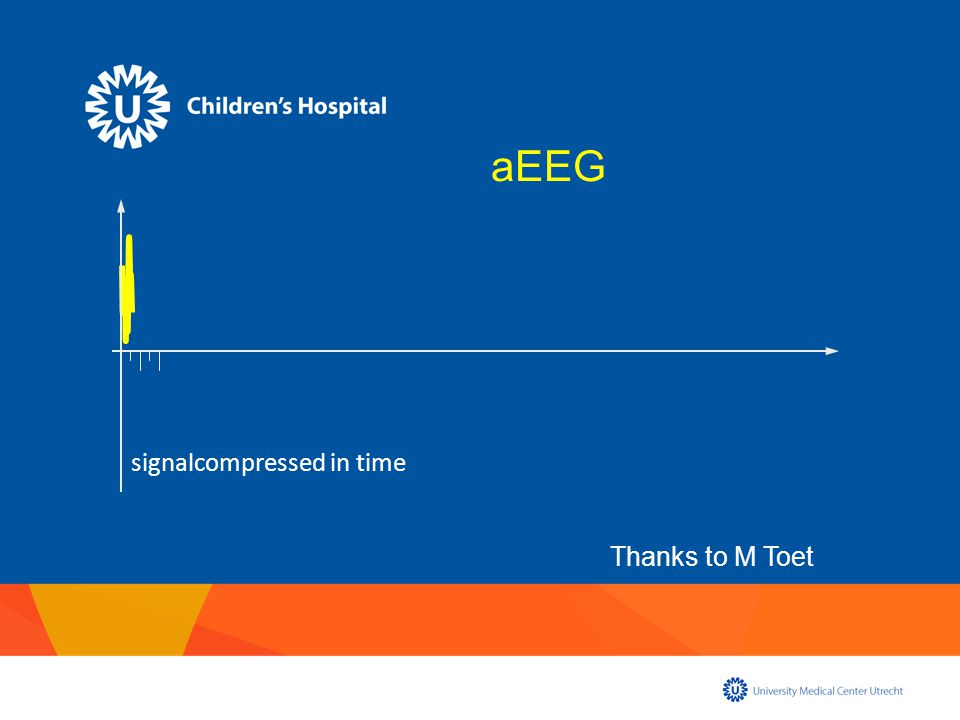 signalcompressed in time aEEG Thanks to M Toet