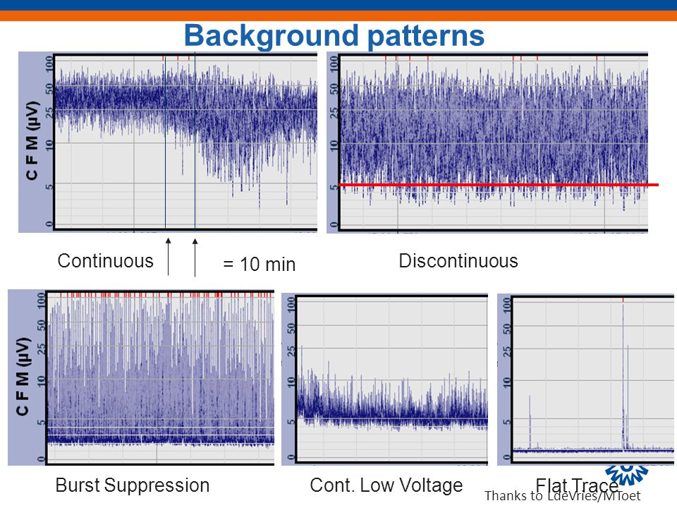 Continuous Burst Suppression Discontinuous Cont. Low Voltage Flat Trace = 10 min Background patterns Thanks to LdeVries/MToet