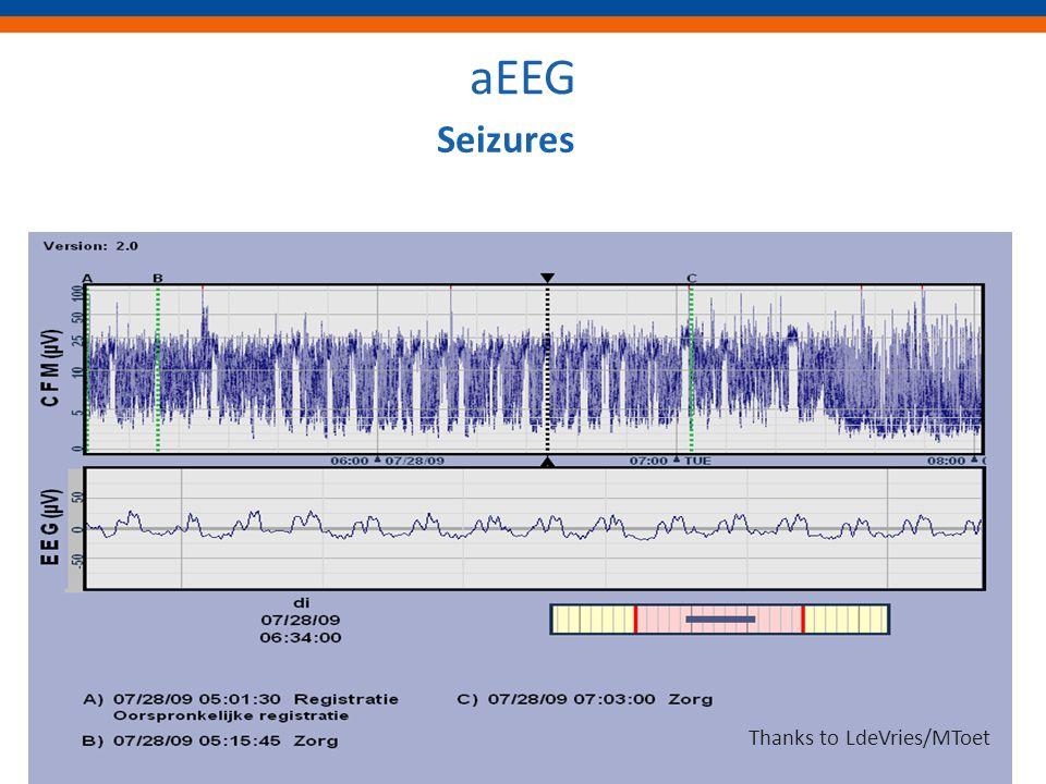 aEEG Seizures