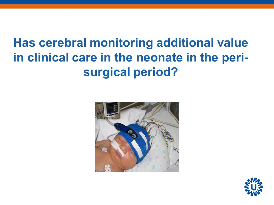 Has cerebral monitoring additional value in clinical care in the neonate in the peri- surgical period
